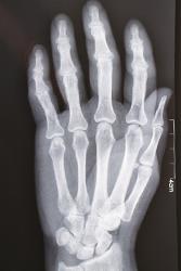 手のレントゲン写真