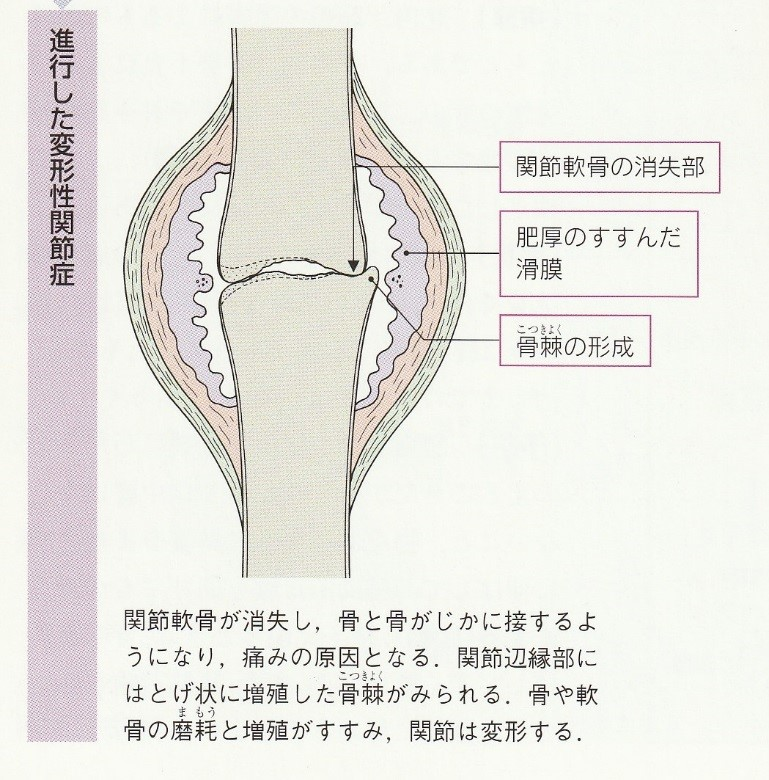 変形性膝関節症.jpg