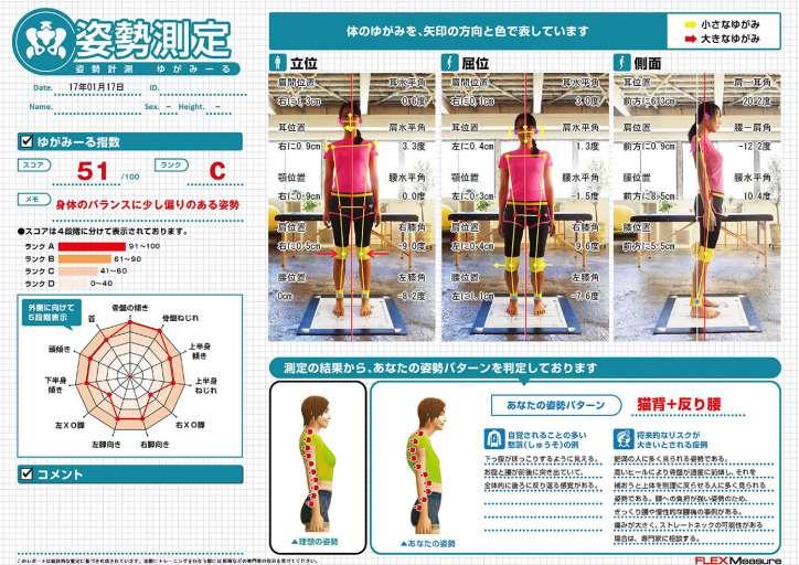 yugamiru-posture-report-724x512.jpg